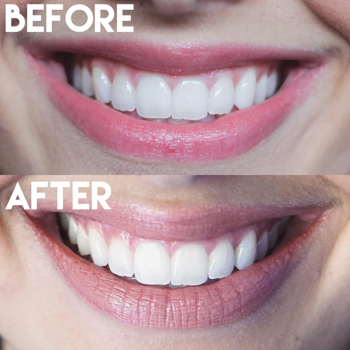 how i whiten my teeth at home happily lindsey smile brilliant